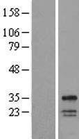 NBL1-17787 - WBSCR28 Lysate