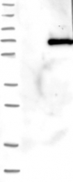NBP1-85008 - WDR20 / DMR