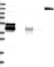 NBP1-81962 - WDR31