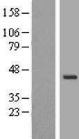 NBL1-17800 - WDR31 Lysate