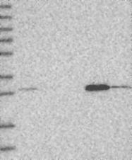 NBP1-83756 - WDR33