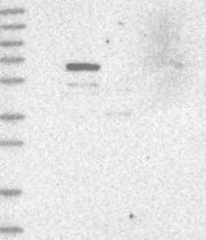 NBP1-83510 - WDR49