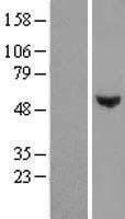 NBL1-17818 - WDR51B Lysate