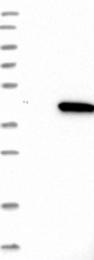 NBP1-92586 - WDR57 / SNRNP40 / PRP8BP