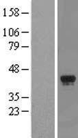NBL1-17821 - WDR57 Lysate