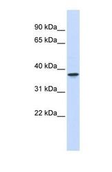 NBP1-56356 - WDR58 / THOC6