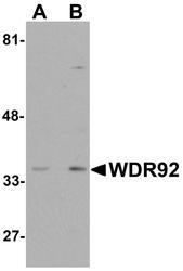 NBP1-76282 - WDR92 / Monad