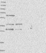 NBP1-92594 - WDR92 / Monad