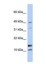 NBP1-57932 - WFDC5 / WAP1