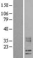 NBL1-17842 - WFDC5 Lysate