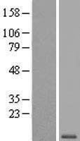 NBL1-17843 - WFDC6 Lysate