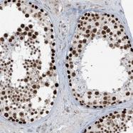 NBP1-90030 - ATPase WRNIP1