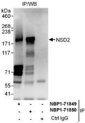 NBP1-71850 - WHSC1