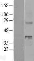 NBL1-17871 - WNT4 Lysate