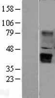 NBL1-17873 - WNT5B Lysate
