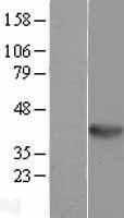 NBL1-17874 - WNT5B Lysate