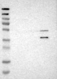 NBP1-86071 - WNT7A