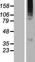 NBL1-17884 - WSB2 Lysate