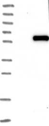 NBP1-83041 - WTAP