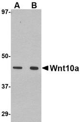 NBP1-76916 - WNT10A