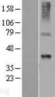 NBL1-17877 - Wnt7b Lysate