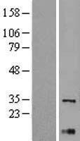 NBL1-17900 - XBP1 Lysate