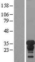 NBL1-17907 - XPA Lysate