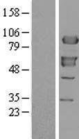 NBL1-17913 - XRCC1 Lysate
