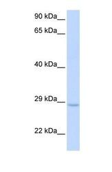 NBP1-58119 - XRCC2