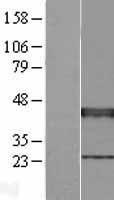 NBL1-17915 - XRCC3 Lysate