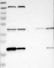 NBP1-85736 - XTP3TPA / DCTPP1
