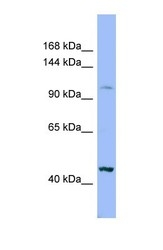 NBP1-69321 - Xylosyltransferase 2 / XYLT2