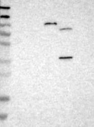 NBP1-87181 - Xylosyltransferase 2 / XYLT2