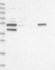 NBP1-87919 - XYLB / Xylulokinase