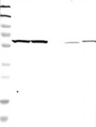 NBP1-86890 - YARS