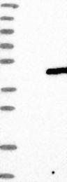NBP1-86765 - YIPF3