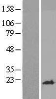 NBL1-17938 - YPEL1 Lysate