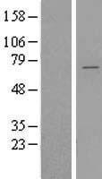 NBL1-17944 - YTHDF2 Lysate