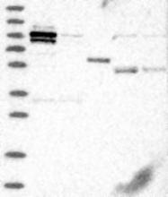 NBP1-88095 - ZA20D1