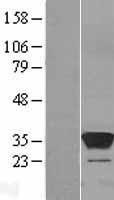 NBL1-18015 - ZA20D3 Lysate