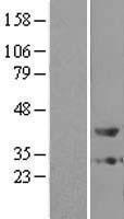 NBL1-14942 - ZADH1 Lysate