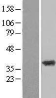 NBL1-17955 - ZADH2 Lysate