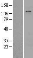 NBL1-17962 - ZBTB11 Lysate