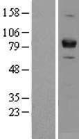 NBL1-17963 - ZBTB17 Lysate