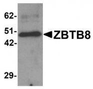 NBP1-76521 - ZBTB8