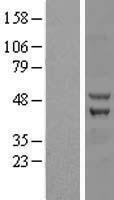 NBL1-17981 - ZC3H10 Lysate