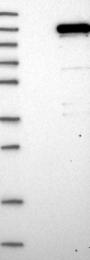 NBP1-82974 - ZC3H11A