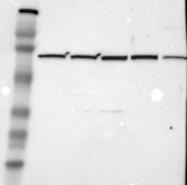 NBP1-84332 - ZC3H12B
