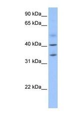 NBP1-56914 - ZC3H14
