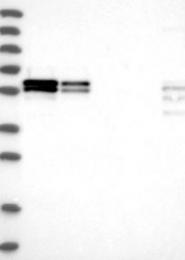 NBP1-81314 - ZC3H15